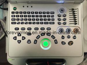 Ultrasuono portatile di Doppler di colore di Yj-C60plus con Ce