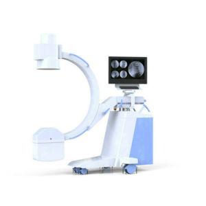 박사와 가진 Portble 디지털 C 팔 방사선 사진술 엑스레이 기계