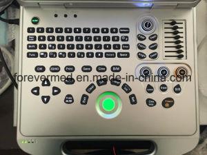 4D de Draagbare Ultrasone klank van Doppler van de Kleur van het notitieboekje (yJ-C60plus)