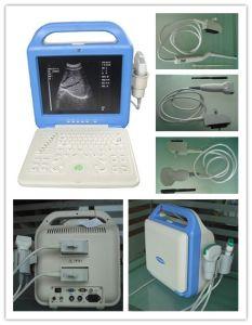 Nouvel écran LCD portable échographe (AJ-6100B LCD)