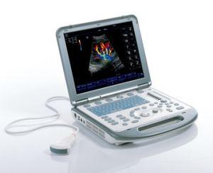 Mindray M5 기동성과 신뢰도 Portable 초음파