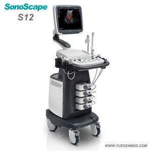 Hospital Medical Carrinho Digital completo da máquina de ultra-som Doppler Colorido Sonoscape S12