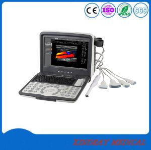 L'Hôpital d'équipement médical portable numérique Échographie Doppler couleur