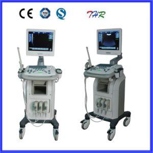 Медицинского ультразвукового сканера 3D с использованием передвижного блока (ПОСЛЕ ПОРОГА-US9902)
