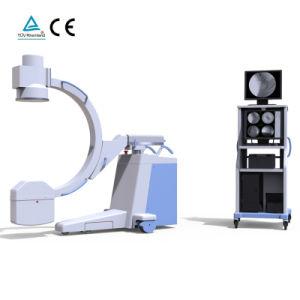 고주파 이동할 수 있는 디지털 C 팔 엑스레이 기계