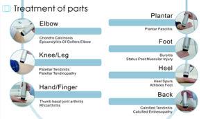 De Apparaten van de Therapie van de Schokgolf van Eswt voor Tendinitis
