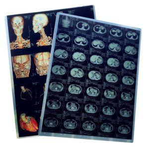 Boa qualidade de filme de jacto de tinta seca descartáveis de papel médicos para o Hospital