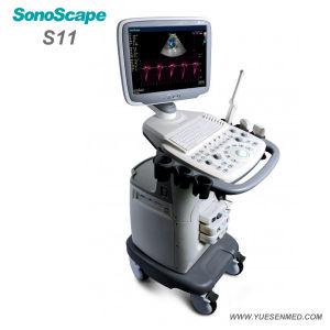 Ultrasone klank van Doppler Sonoscape van de Kleur van het Ziekenhuis van Ysenmed de Medische Mobiele Draagbare
