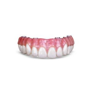 Mer laboratoire dentaire Implant Prothèse hybride de soins dentaires de restauration