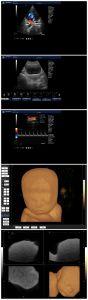Scanner de Ultra-sonografia Doppler portátil (K2)