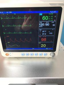 De goedkoopste Geduldige Monitor van de Prijs met Etco2 en IBP voor het Gebruik van het Ziekenhuis ICU