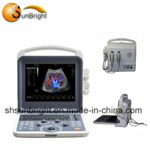 Funktions-Farben-Doppler-Ultraschall-Maschinen-Preis Doppler des medizinischen Gebrauch-Cw/Pw