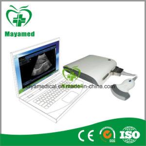 My-UM010 Totalmente Digital Portátil Software Caixa de ultra-som 3D