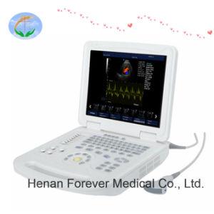 熱い販売の医学のポータブル2D/3Dの超音波の工場