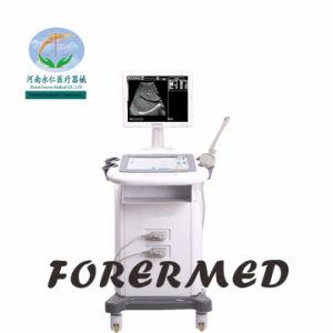 医療機器のデジタルB/Wトロリー超音波