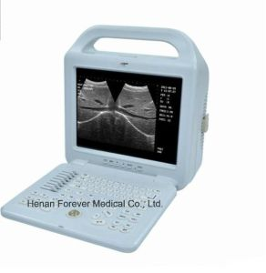 Dispositivo médico Digital B/W scanner de ultra-som portátil