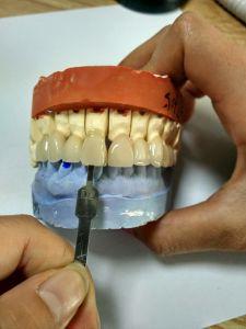 Prótesis de zirconio Bruzix coronas y puentes con cerámica Minghao bucal realizados en laboratorio dental