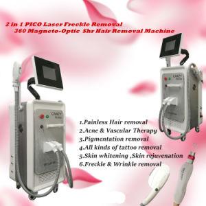Meilleur Rajeunissement de la peau Opt SHR IPL + laser YAG ND L'Epilation Permanente / Tattoo dépose la machine