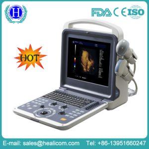 Huc-300 Equipamentos Médicos Cor scanner de ultra-som portátil