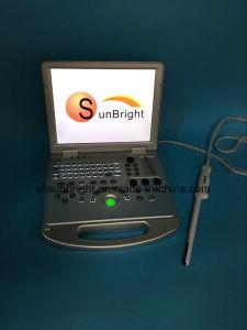Портативный ноутбук 3D цветового доплеровского ультразвукового аппарата заводская цена