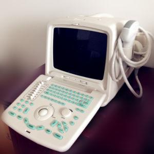 10 de Hand van de duim droeg de Draagbare Scanner van de Ultrasone klank met het Teken van Ce