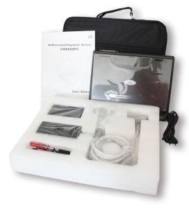 Contec CMS600P2 échographe numérique portable l'équipement médical de la machine