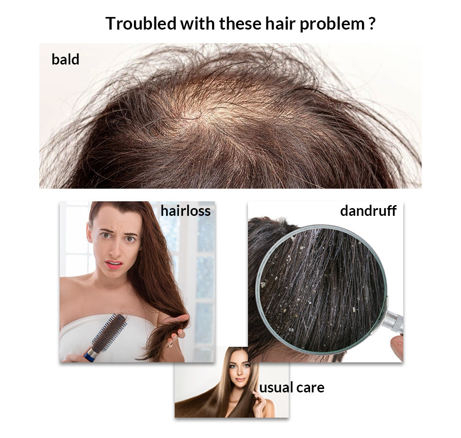 Ginger Essence Anti Dandruff Shampoo Anti Hair Loss Promotes Hair ...