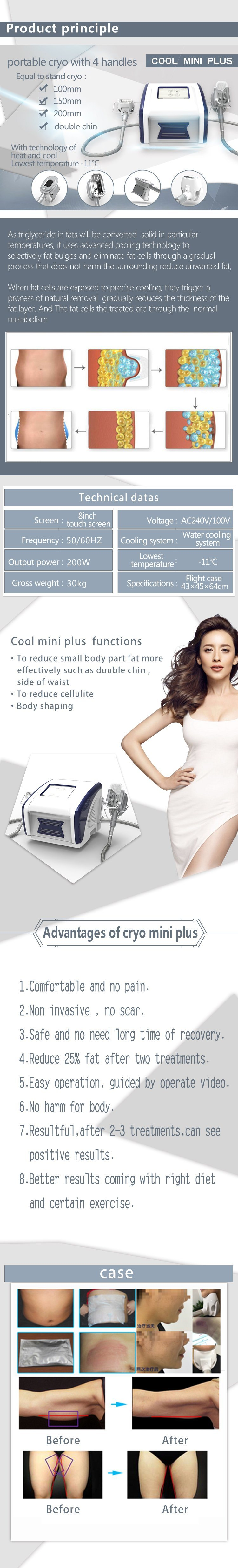 32a06b9476 Fat Freezing Cryolipolysis Slimming Beauty Equipment with Fast ...