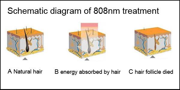 Tolgo epilatore capelli e bikini profondo