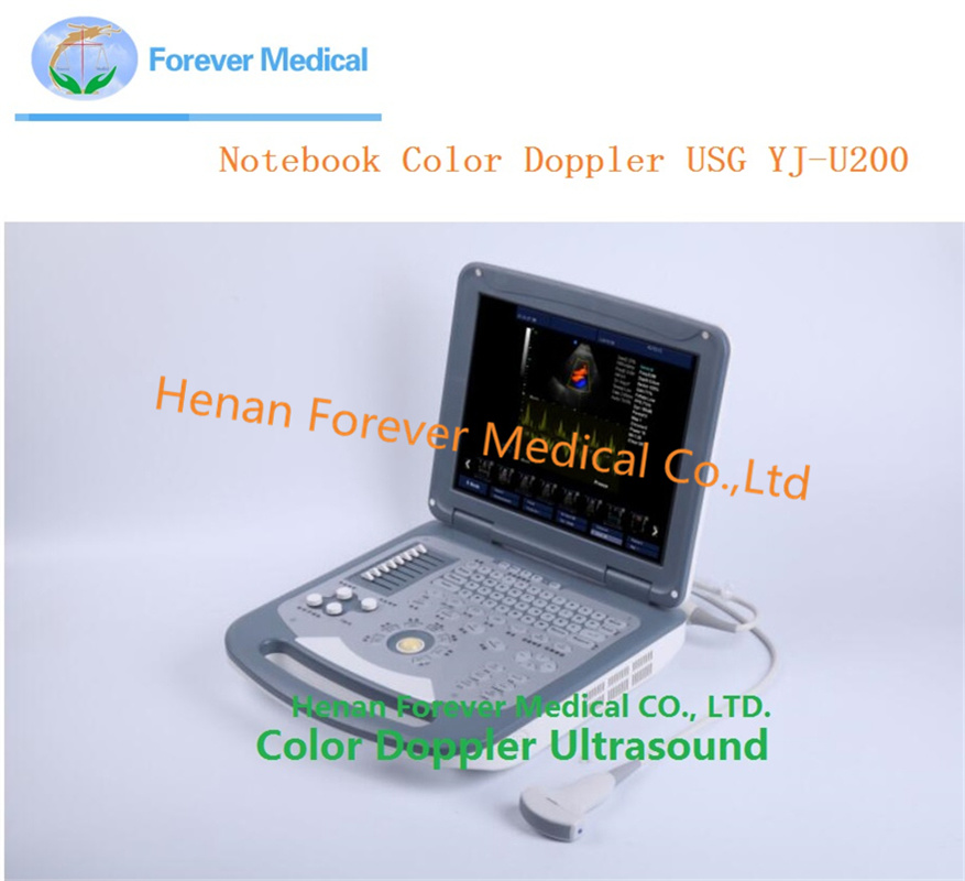 Notebook Color Doppler Portable Ultrasound Similar to Mindray M5, M7
