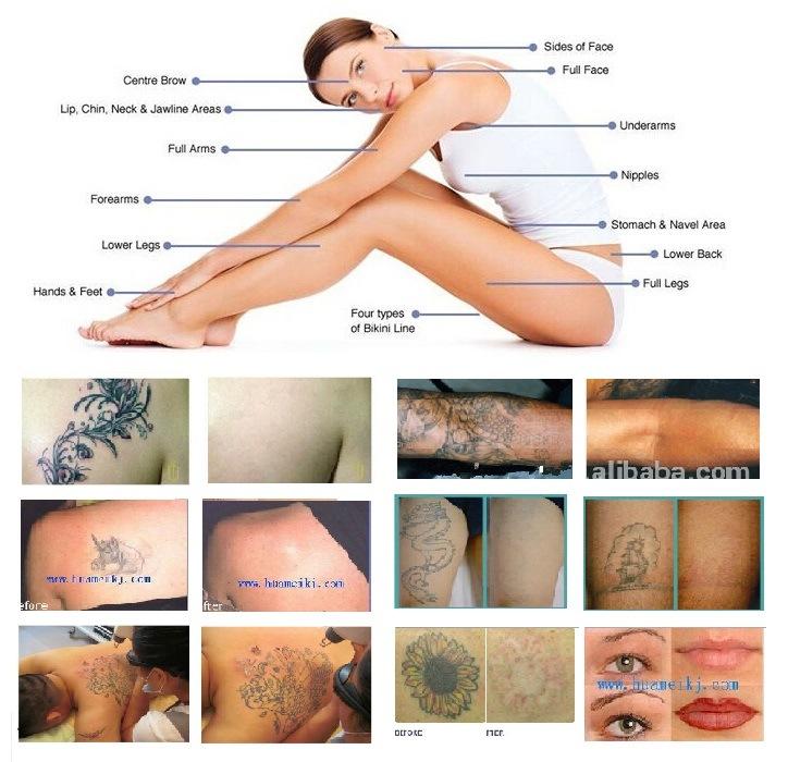 Q Switch Equipos Médicos Q Pone Nd Yag Eliminar Tatuajes Belleza