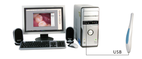 Md-770 USB Intraoral Camera Dental Supply High Quality Intra Oral Camera Work with PC