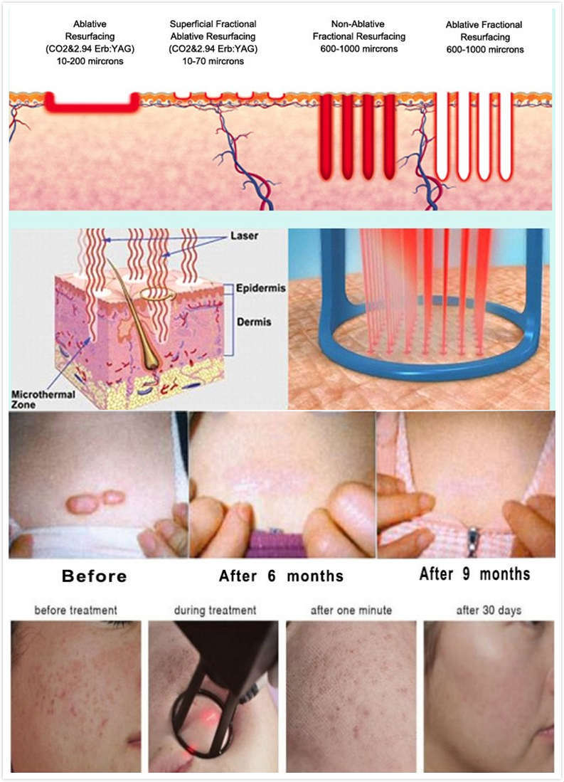 Km Fractional CO2 Laser Scars Removal Machine CO2 Lasers