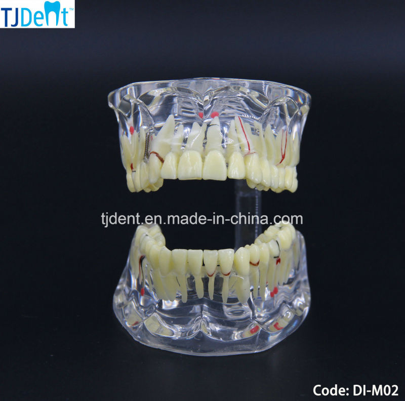 Othodontic Anatomía dental Tratamiento de la enseñanza de los ...